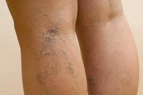 népi módszer a visszerek a lábak lehetséges-e fogamzásgátló tablettákat alkalmazni visszér ellen
