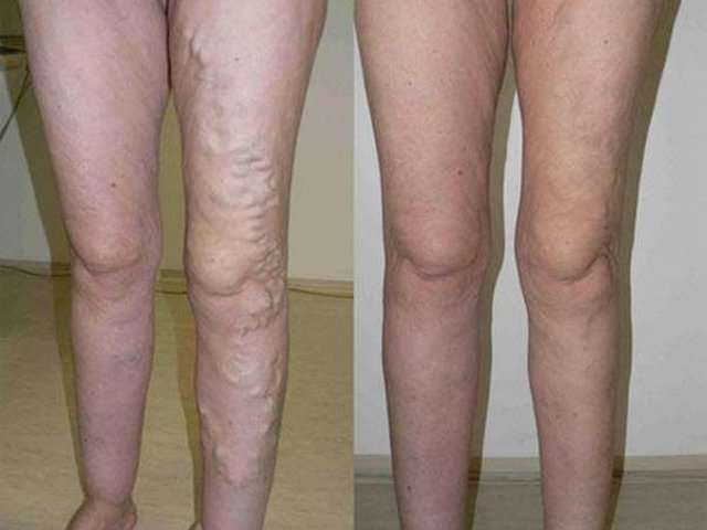 Herbioticum vadgesztenyés lábkrém – 250ml