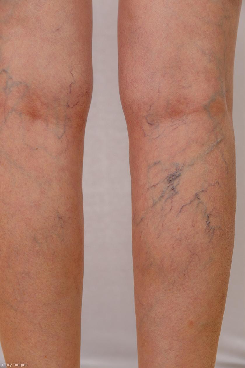 gyakorlatok a varikózis kezelésére a lábakon visszér a terhesség után