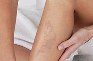 a lábak varikózisának kezelése gyógyszerekkel