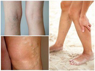 A láb varikózisának modern kezelése