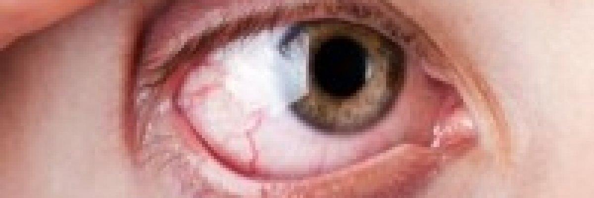 Visszér: okok, tünetek és kezelési módok