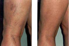 a ciklus megsértése visszérrel hogyan kell kezelni a visszereket a lábakon
