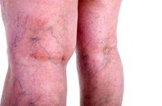 szülés visszérrel a lábakon az akupunktúra a visszér kezelésére szolgál
