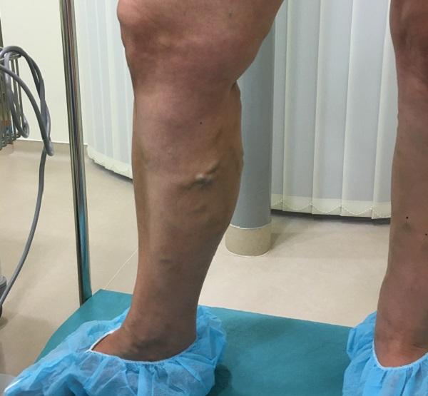 könnyű munka a visszerek műtétje után