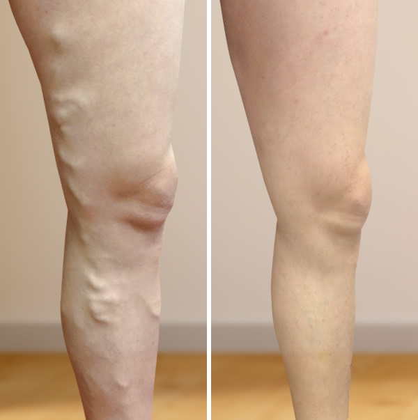 visszerek a lábakon a műtét után