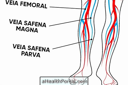 a varikózis eltávolítása után a lábakon
