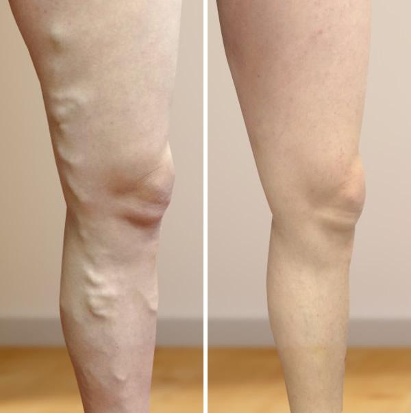 műtét visszerek a lábakon műtét után