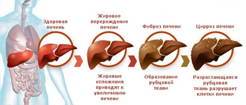Anabolikák