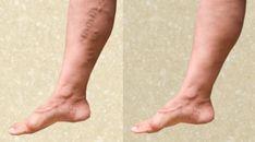 szülés visszérrel a lábakon visszerek kezelése népi gyógymódokkal terhes nőknél