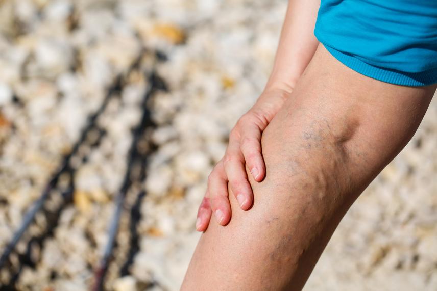 visszér, melyik láb fáj