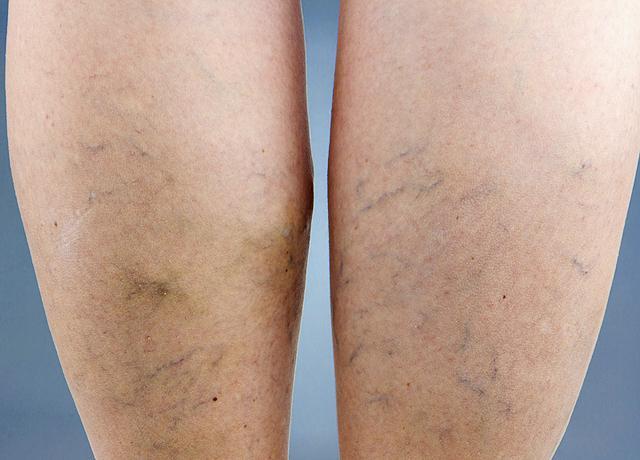 Varikozos kúpok a lábak kezelése