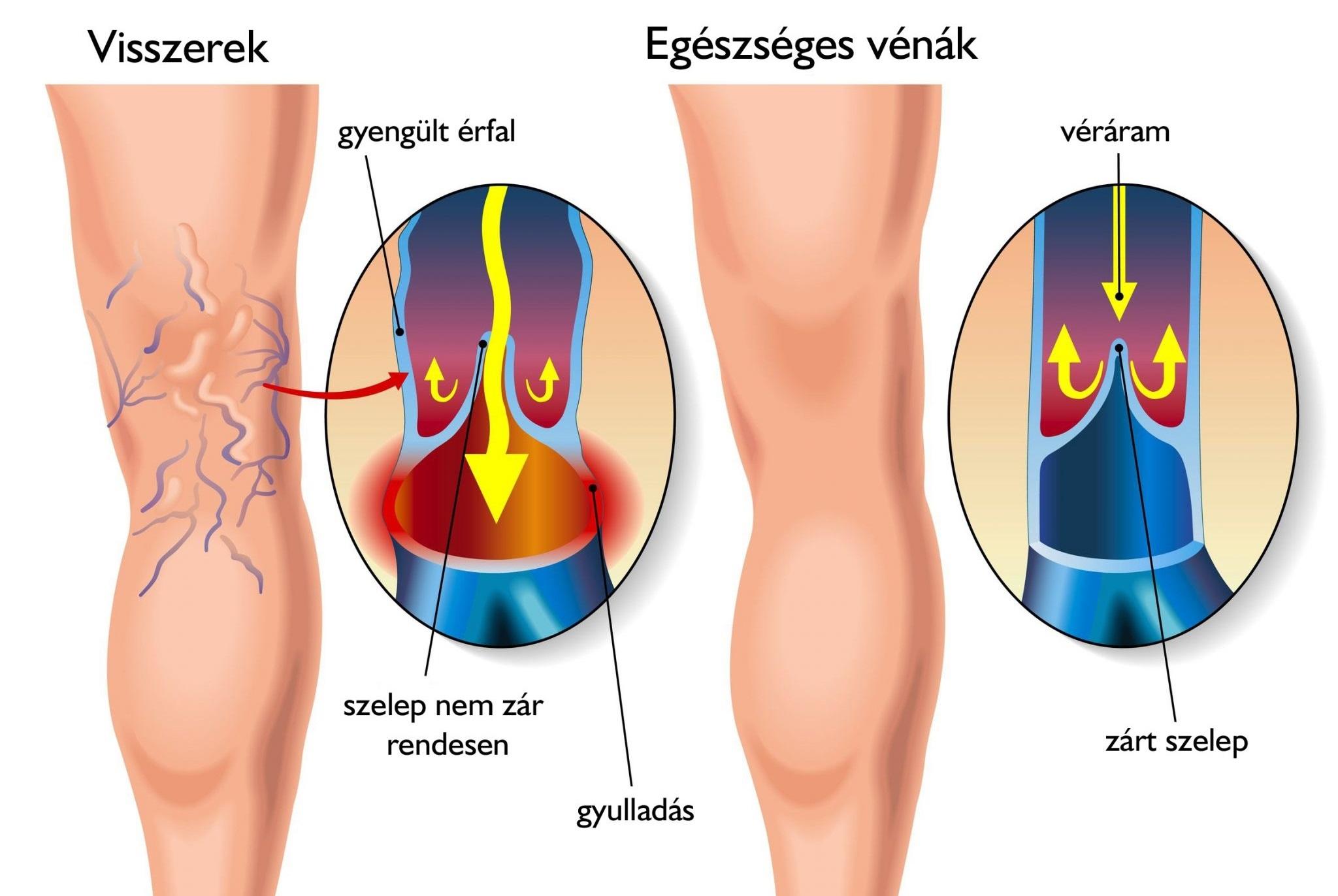 a térd alatti visszér tünetei