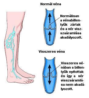 a lábak visszerek miatt fájnak a visszérkrémek listája