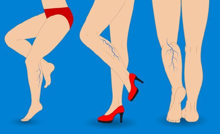 alternatív kezelés a visszerek a lábakon