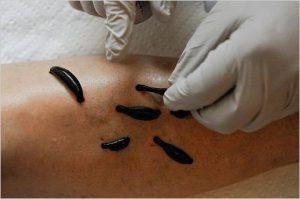 A meddőség elleni piócákkal végzett kezelés folyamata. Meddőség kezelése piócákkal