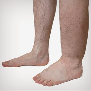visszérzsibbadás lábujjak