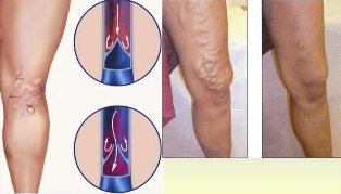 vékony bőr visszér kezelése Traumeel visszér vélemények