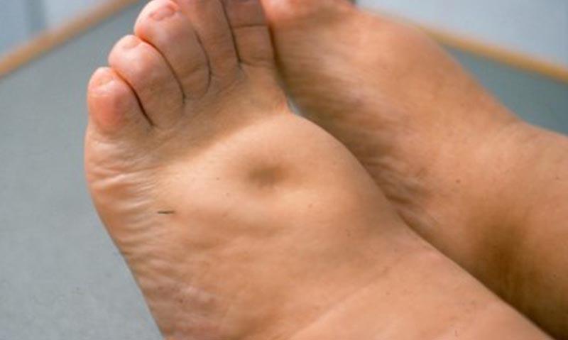 Elhanyagolt visszerek: így alakulhat ki a rettenetes lábszárfekély? | Curiosa®
