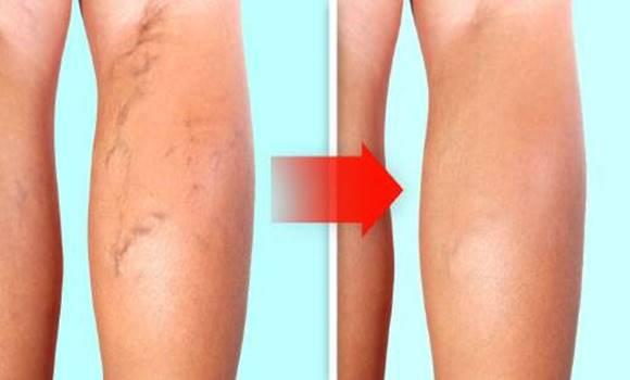 a lábak a visszér miatt nem voltak hajlandók terhesség visszér kezelése
