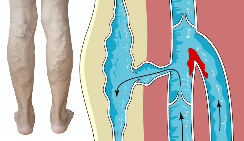 ahol a lábak megduzzadnak a visszérben