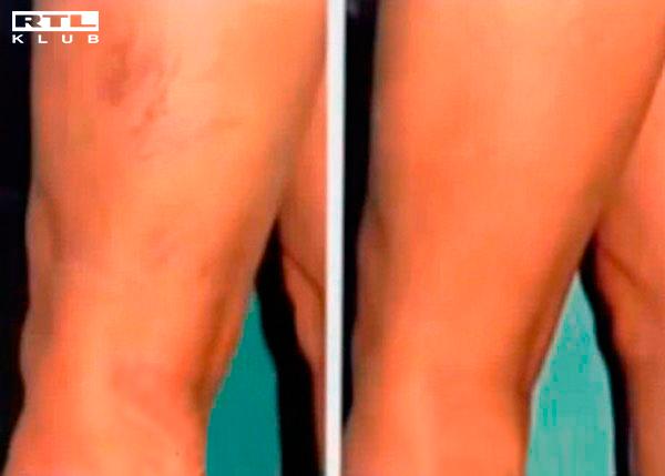visszér és háló a lábakon visszér torna megelőzése
