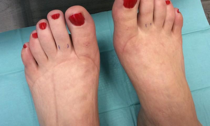 karcsúsító fehérnemű visszér gyakorlatok a varikózisos lábak számára