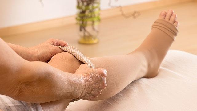 hogyan lehet bekötözni a visszér lábát