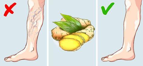 milyen zöldségek hasznosak a visszér ellen melyik kórházba kerül a visszér