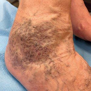 a lábakon található visszér okoz tüneteket