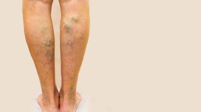 hogyan lehet mérni egy lábat visszérrel visszér és jóga