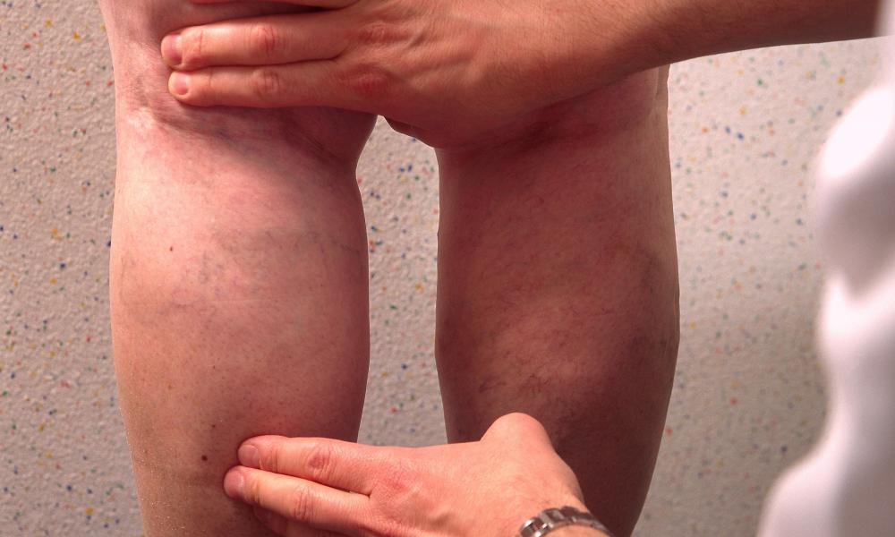 visszérfoltok a lábakon fotó távolítsa el a visszerek az arcon