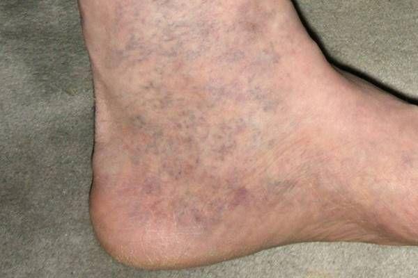 visszér a lábakon kék foltok hirudoterápia és visszér fotó