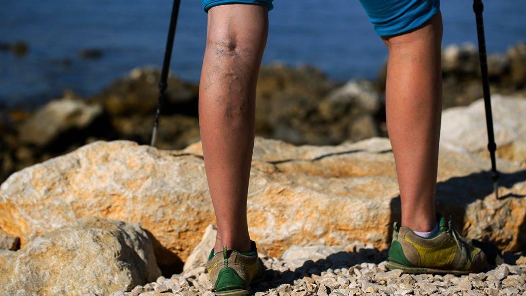 a lábak visszérégik