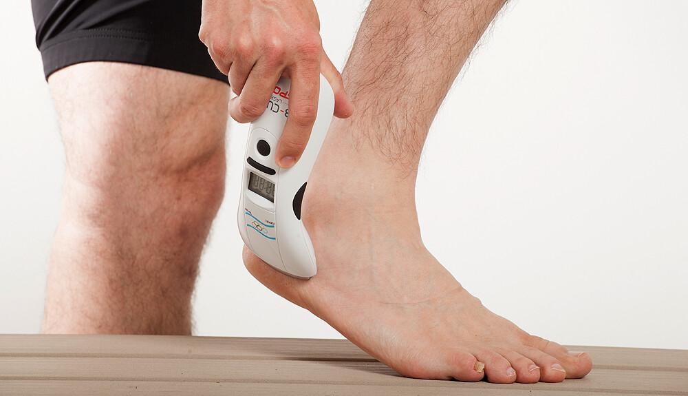 a lábak varikózisának megnyilvánulása