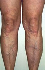 a lábfájás tünetei visszerek okb visszér