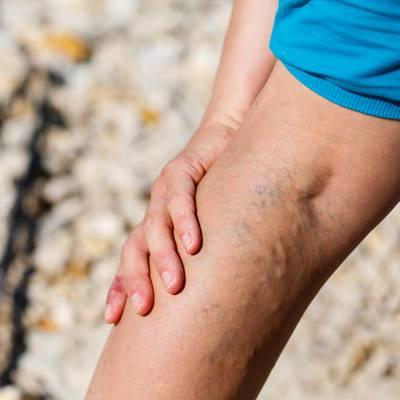 a visszerek megelőzése a lábakon testmozgás