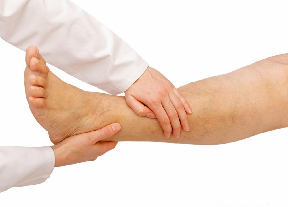 visszérgyulladás esetén a láb zsibbad
