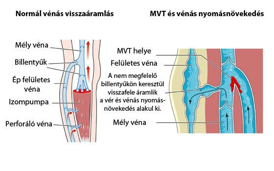 Visszérgyulladás, trombózis