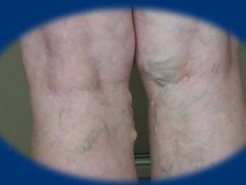 vékony bőr vagy visszér