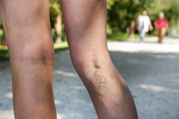 a varikózis miatt fáj a lábak mit kell tenni