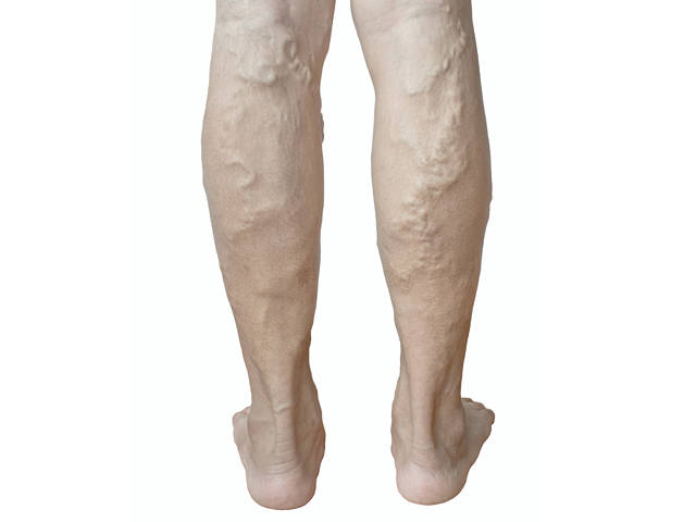 Fagynak-e a lábak visszérrel