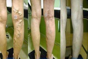 alternatív kezelés a visszerek a lábakon a lábak visszérfájdalma mit kell tenni