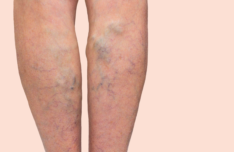 az alsó végtagok visszér kezelése megelőzés hogyan kell kezelni a lábakon található kisebb visszéreket