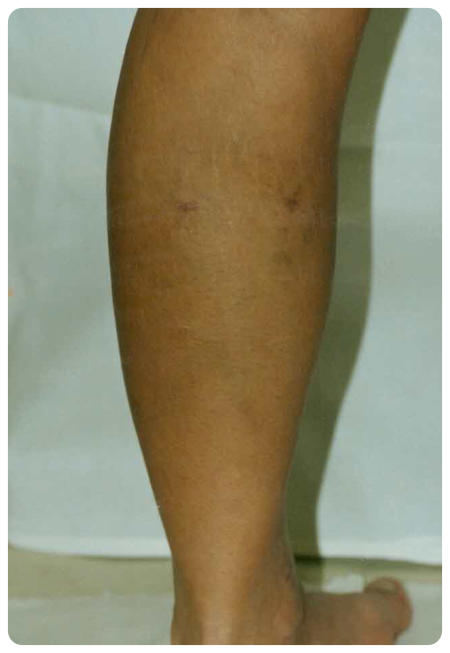 lábműtét a visszér eltávolítására