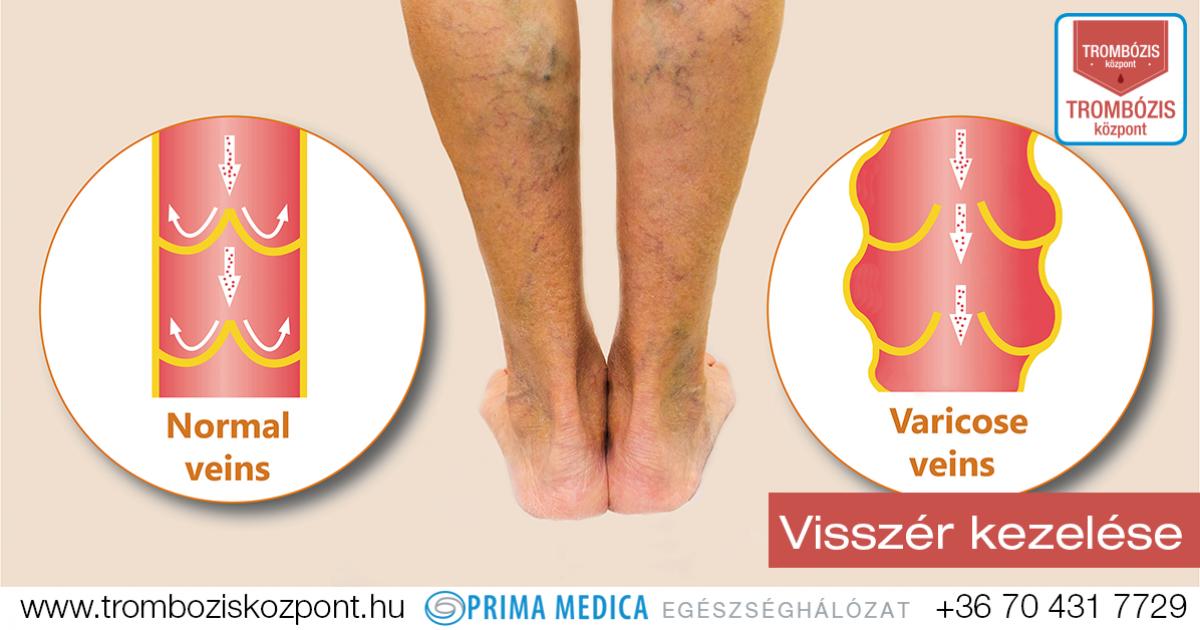 a lábakon lévő visszerek orvosi kezelése
