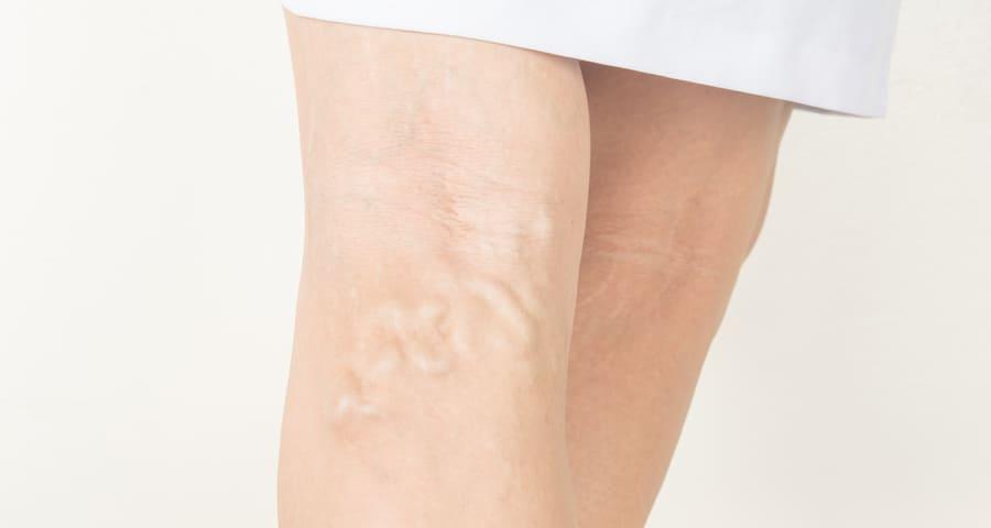 a visszér alternatív kezelése a lábakon vélemények