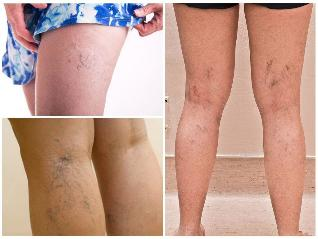 visszerek és csillagok a lábakon almaecet visszeres terhes nőknél