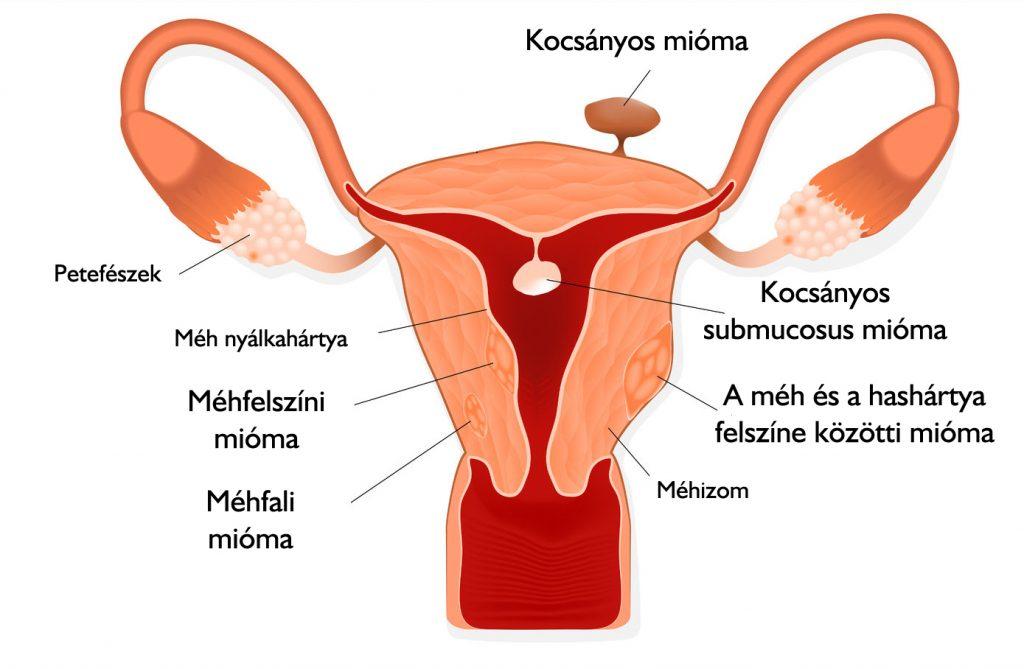 phlebodia a kismedencei szervek visszérrel