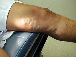 Orsk visszeres műtét a visszér erős kezelése
